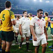 England loses to Australia