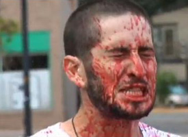 Part-Meta owner Reed Goodman gets bloody.
