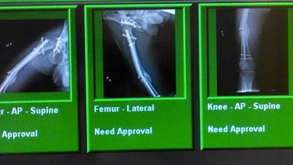 Javier Villegas' X rays shows a broken femur.